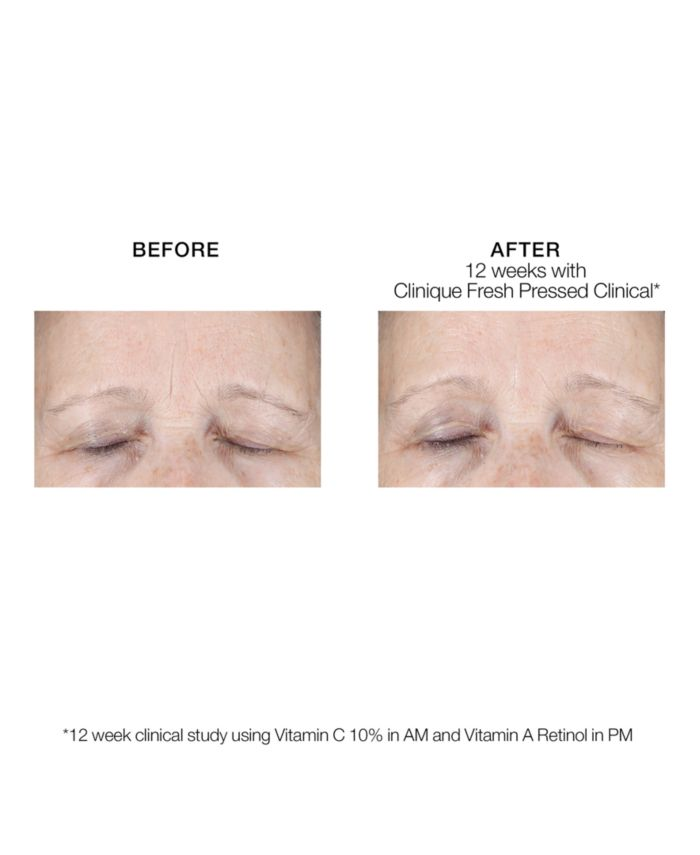 Clinique Fresh Pressed Clinical™ Daily + Overnight Boosters with Pure Vitamins C 10% + A (Retinol) 2 piece  & Reviews - Skin Care - Beauty - Macy's
