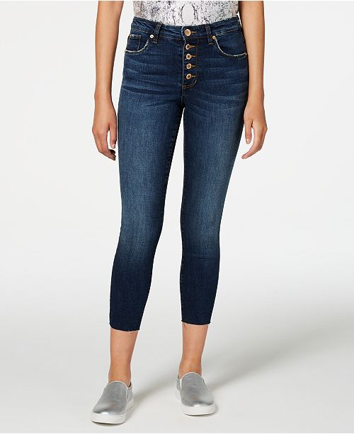 STS Blue Ellie Button-Fly Ankle Skinny Jeans