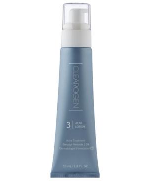 Benzoyl Peroxide Acne Treatment Lotion