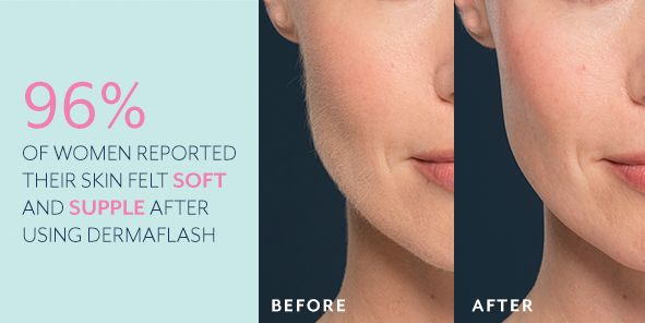 96 percent, of Women Reported Their Skin Felt Soft and Supple After Using Dermaflash, Before, After